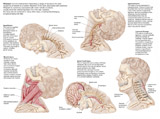 STK701051H © Stocktrek Images, Inc. Medical chart showing the range of injuries to the human neck caused by whiplash.