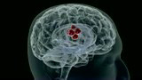 STK800215F © Stocktrek Images, Inc. Conceptual video of a tumor in human brain.