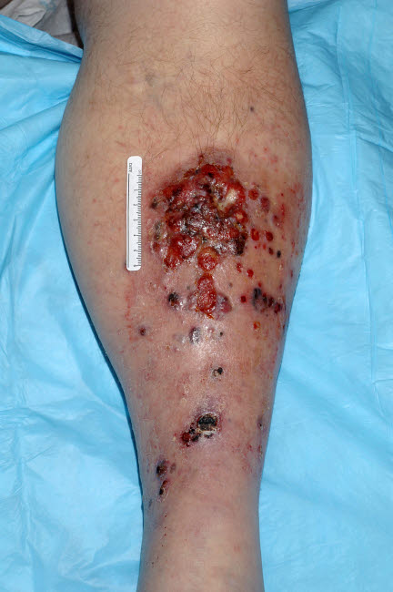 NIH700049H © Stocktrek Images, Inc. Large eroded plaque on the leg with areas of crust.
